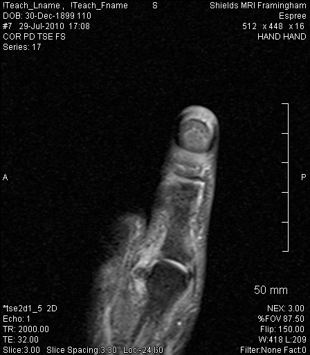 What a torn adductor muscle of the thumb looks like.