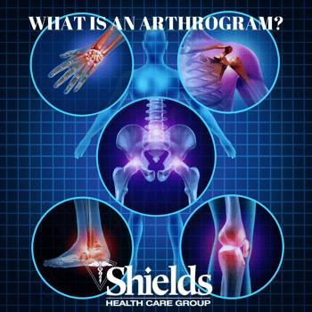 WHAT IS AN ARTHROGRAM_